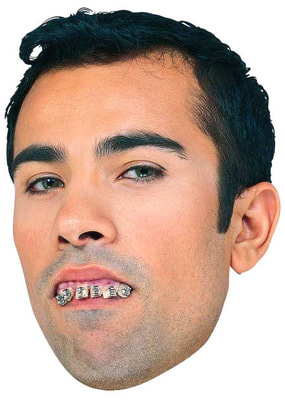 Фото Кривые зубы с брекетами