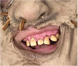 Фото Кривые зубы